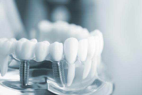Cấy ghép răng implant có đau không?