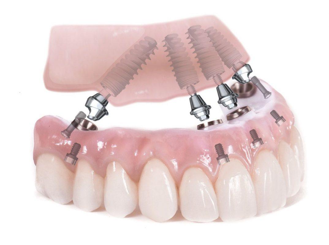 Quy trình cấy ghép răng Implant