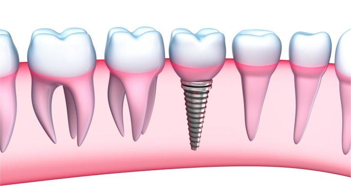 Cấy ghép implant vào khoang hàm