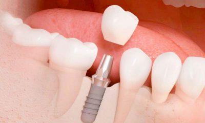 Kỹ thuật cấy gheps Implant là gì?
