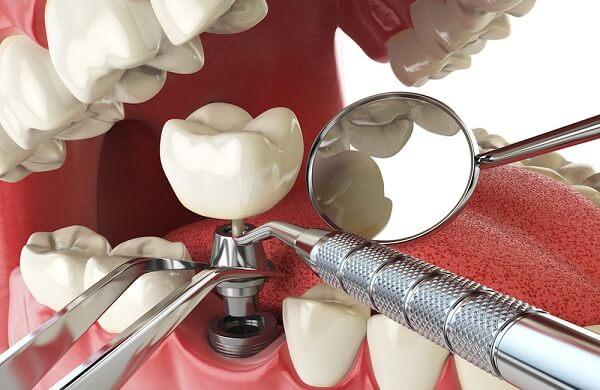 Đặt Implant vào xương hàm