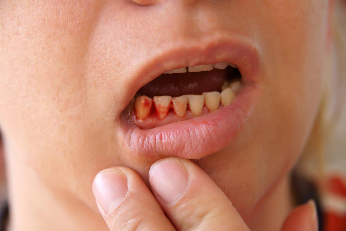 Biến chứng có thể gặp phải khi trồng răng Implant