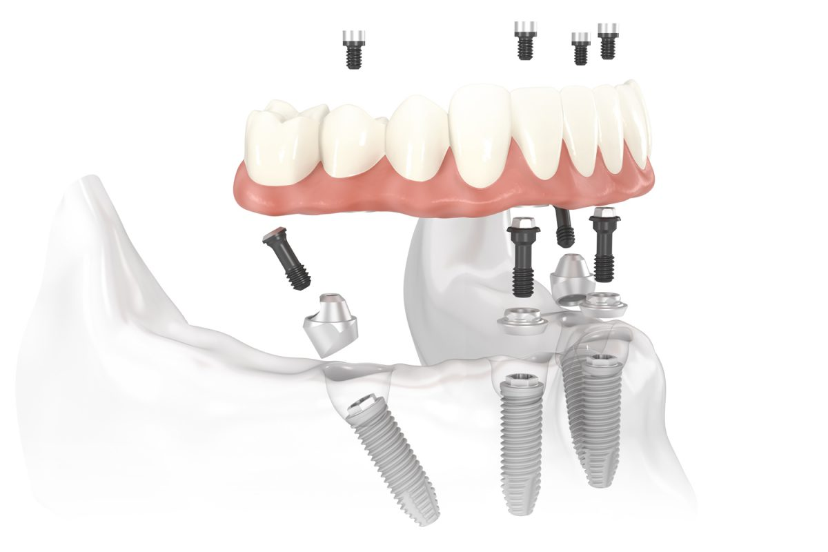 Cấy ghép Implant all in 4 hiện đại