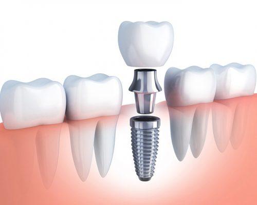 Cấy ghép răng Implant cho người trung niên