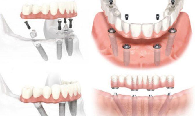 Chi phí trồng răng Implant all on 4