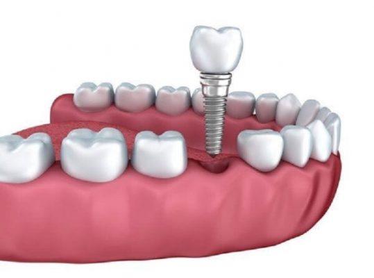 Chi phí trồng răng implant đơn lẻ