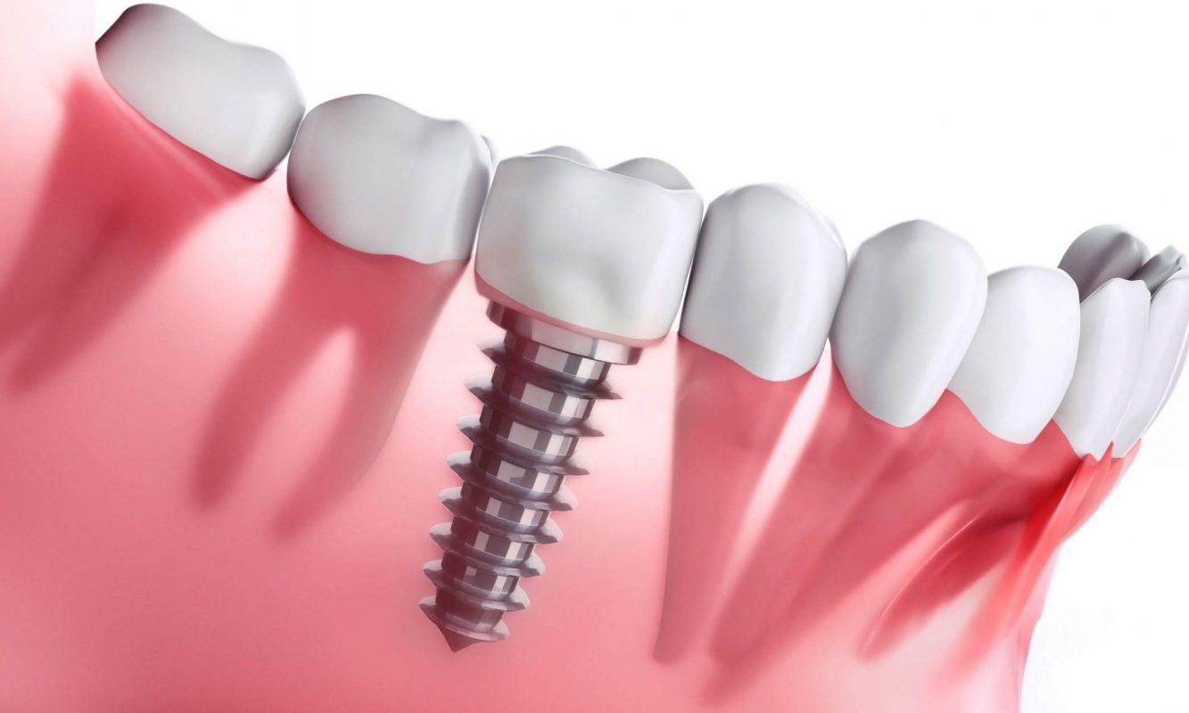 Quy trình cấy ghép răng có đau không?