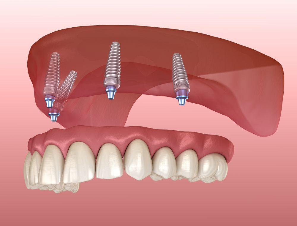 Có nên làm răng Implant không?