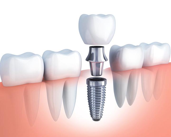 Có nên trồng răng implant trả góp không?