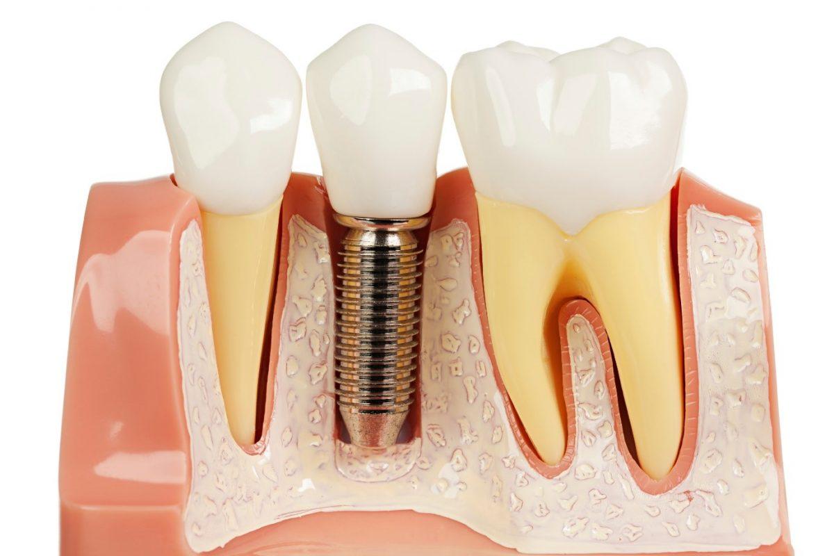 Dịch vụ trồng răng giả implant bao nhiêu tiền?