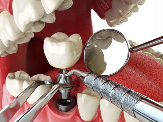 Giải đáp có nên cấy ghép răng Implant ngay hôm nay