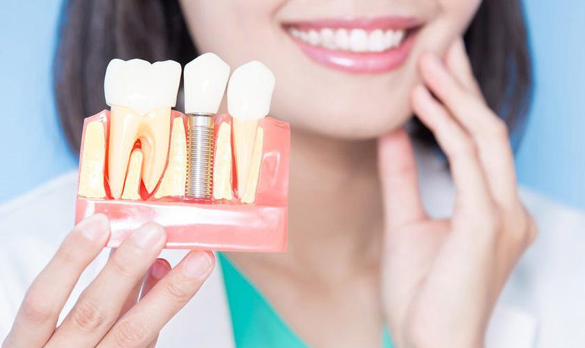 Giải đáp trồng răng Implant có tốt không?