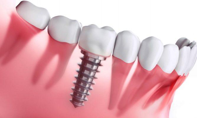Khắc phục răng Implant bị lung lay