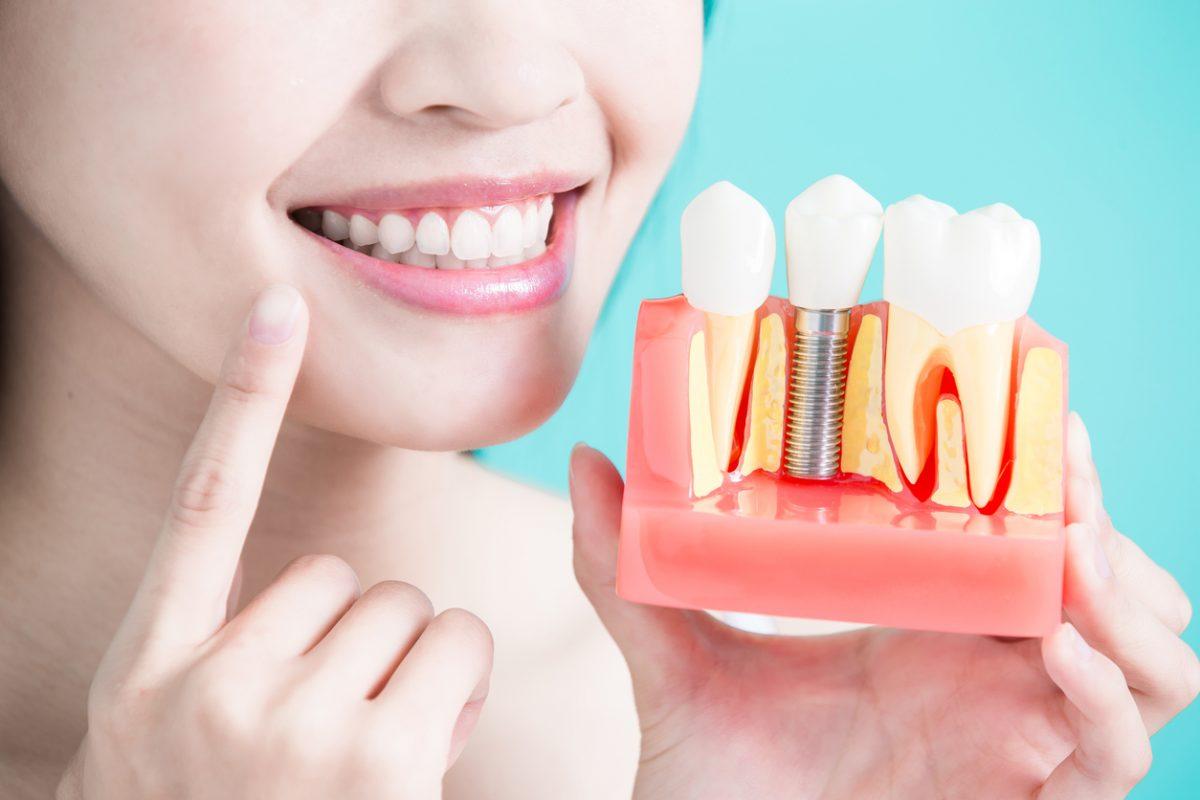 Khám lâm sàng rất cần thiết khi trồng răng Implant