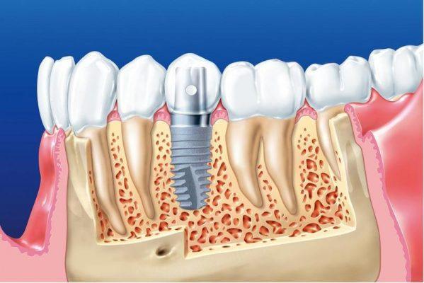 Những điều cần biết về làm răng Implant