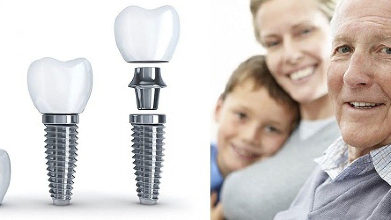 Ở đâu trồng răng implant cho người già tốt nhất?