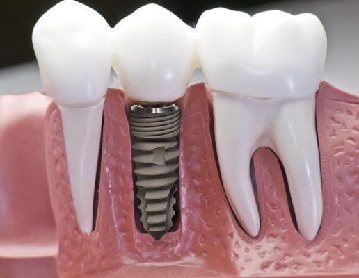 Răng implant bị lung lay do đâu?