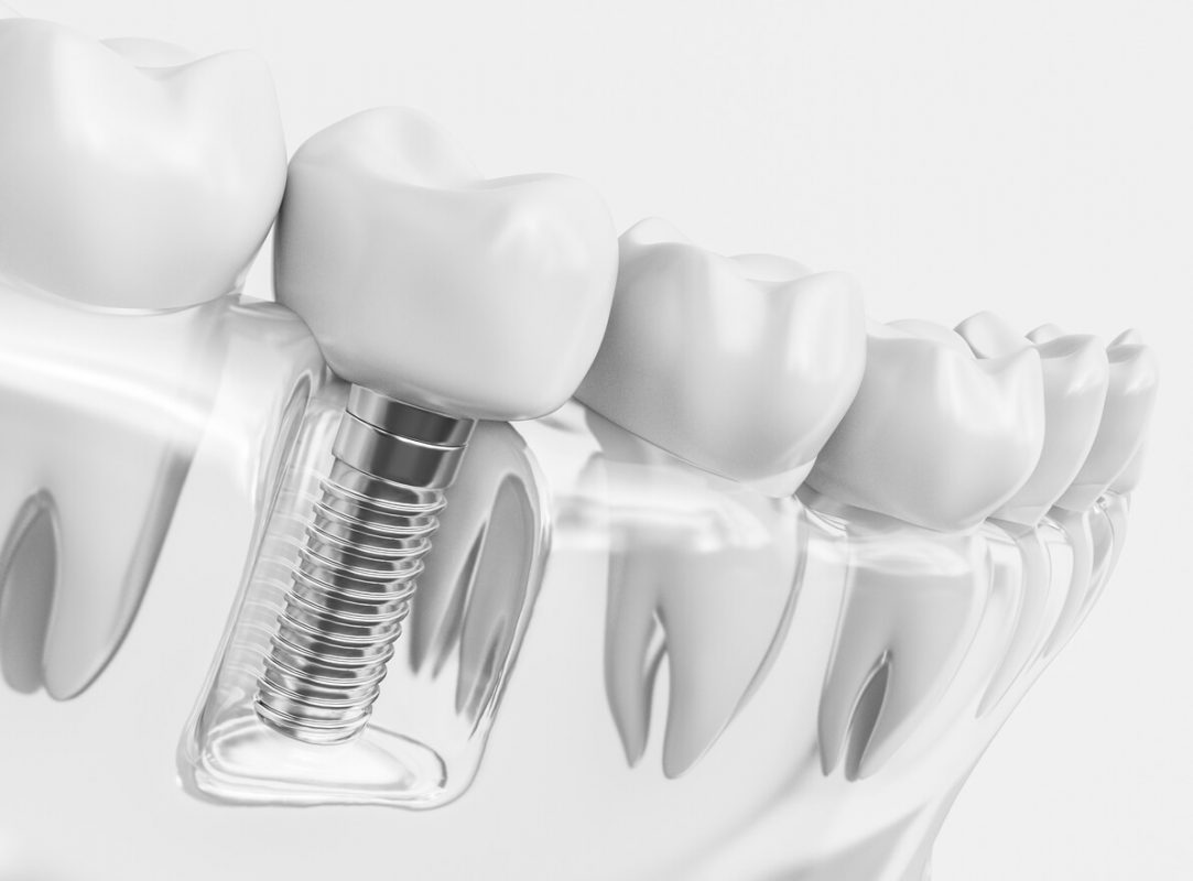 Sử dụng trụ kém chất lượng trồng răng implant có đau không?