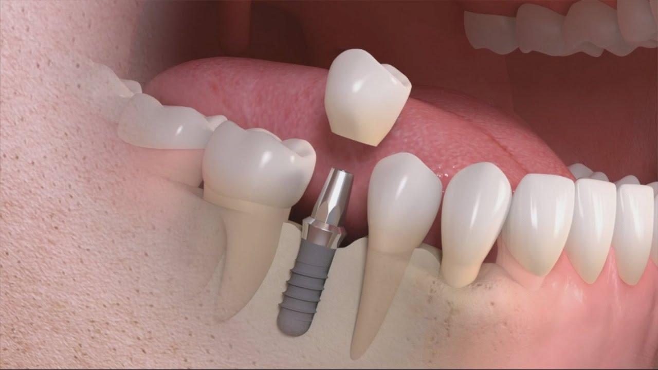 Tại sao phải cấy ghép Implant cho răng đã mất