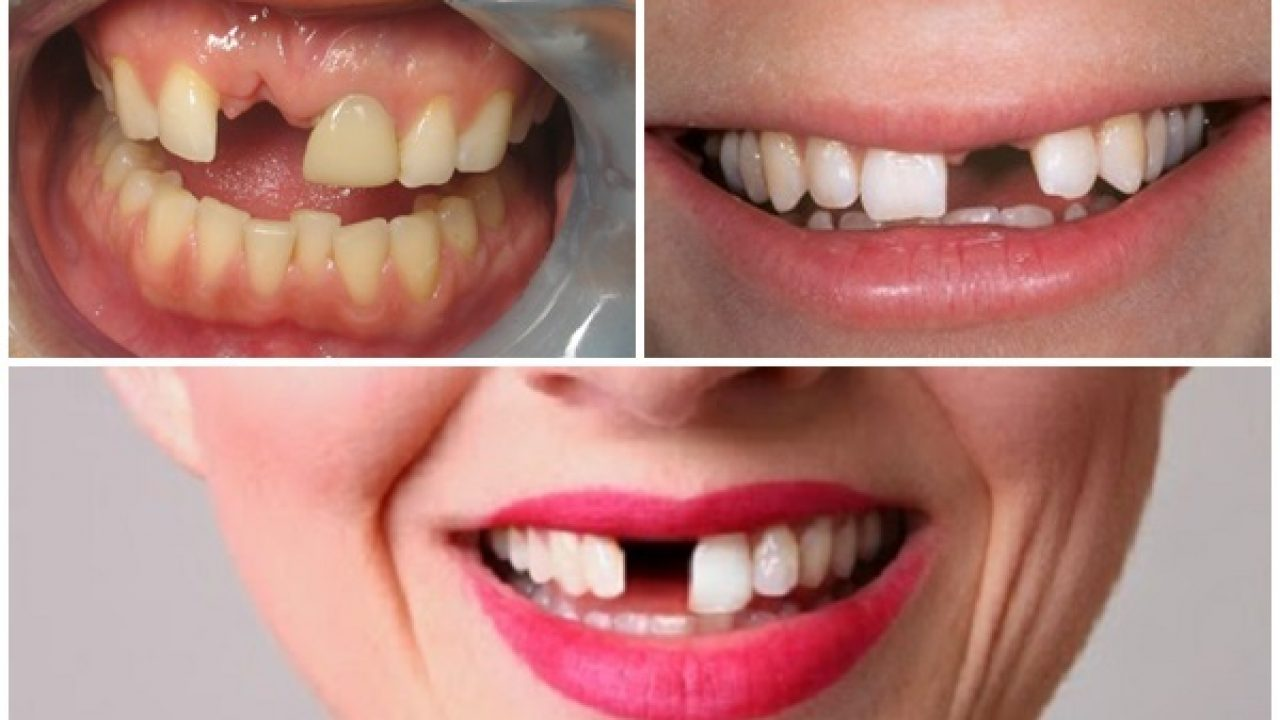 Trồng răng Implant có nguy hiểm không?