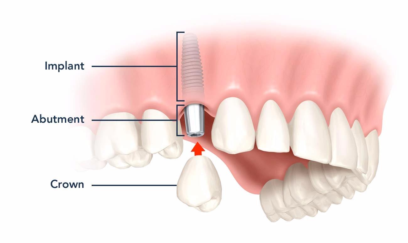 Trồng răng Implant giá rẻ có an toàn không?