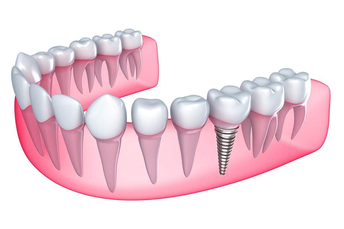 Trồng răng Implant loại nào tốt?