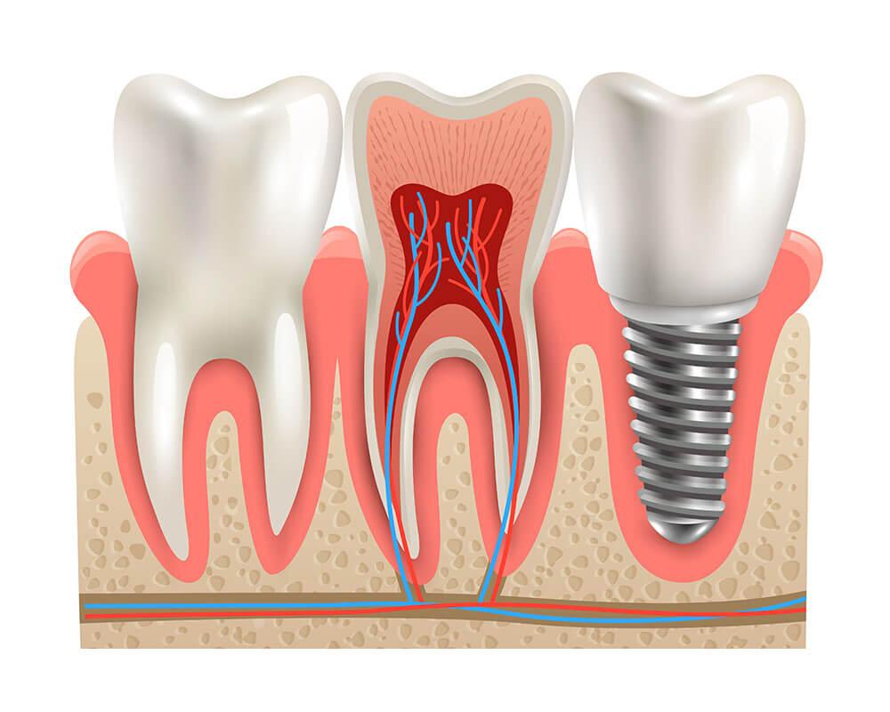 Tiêu chí lựa chọn địa chỉ trồng răng implant ở đâu tốt Tphcm