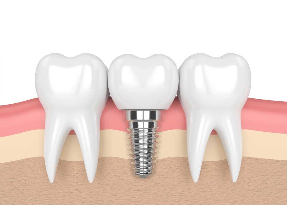 Cấu tạo ba phần răng implant