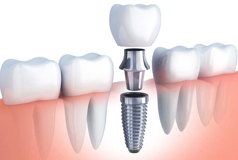 Implant - giải pháp thẩm mỹ răng hữu hiệu