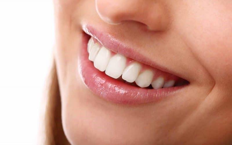 Niềng răng bằng mắc cài sứ tự buộc mang lại một hàm răng đẹp
