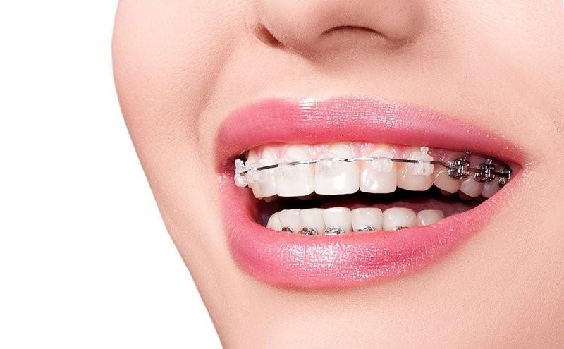 Niềng răng là kỹ thuật chỉnh nha hiệu quả nhất