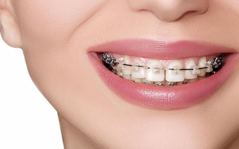 Niềng răng mắc cài sứ tự buộc mang lại hiệu quả điều trị cao