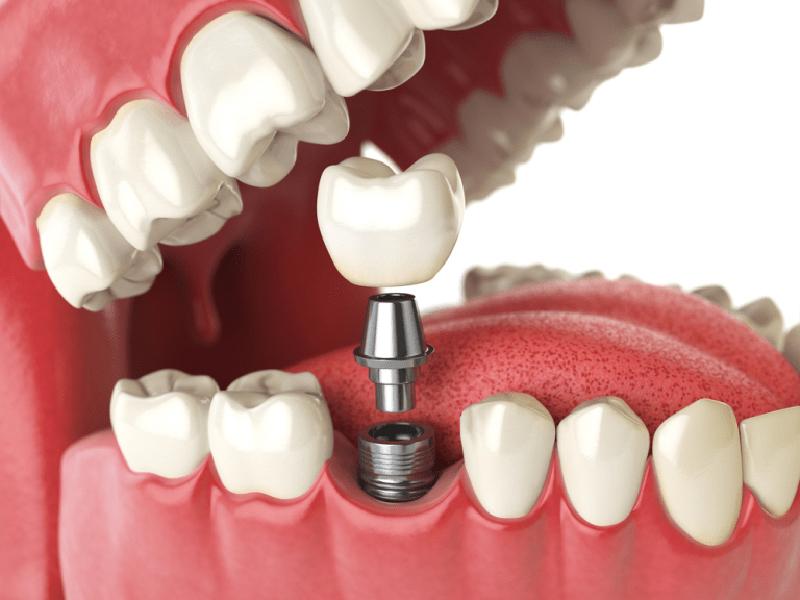 Thực hiện cấy ghép Implant mất bao lâu?