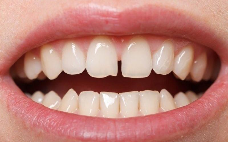 Răng thưa là trường hợp cần thực hiện niềng răng mắc cài sứ tự buộc