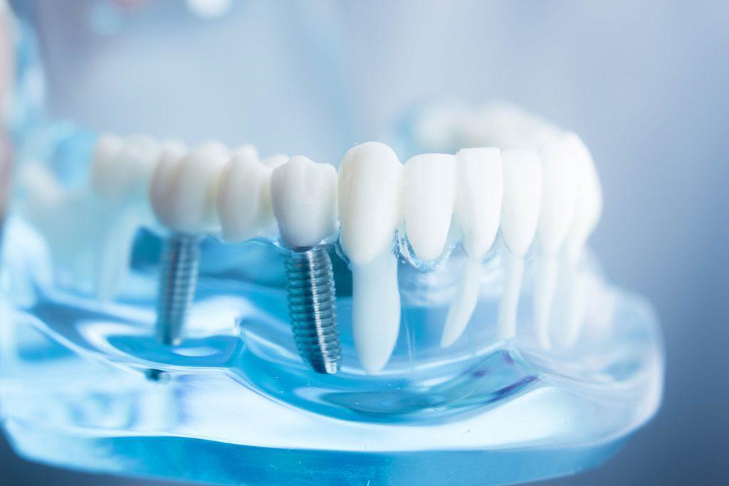 Tạo hình, phục hồi răng cho mọi khách hàng