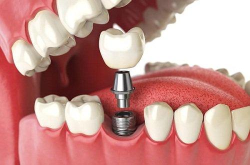 Trồng răng Implant có đau không?