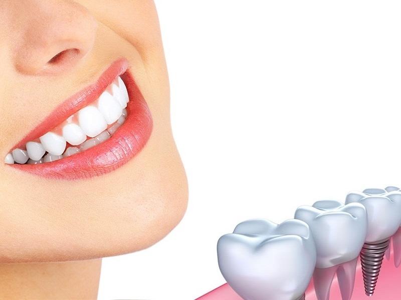 Trường hợp nên chọn cấy ghép răng Implant