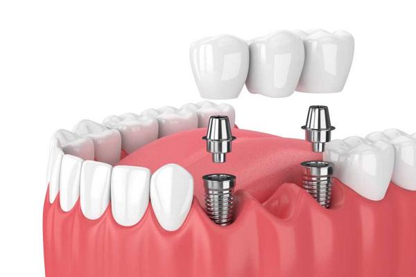 Ưu điểm khi cấy ghép răng Implant