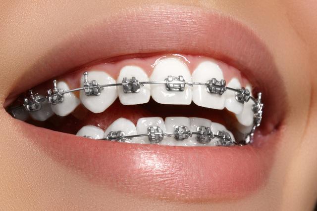 Cần lưu ý khi chọn địa chỉ niềng răng tại TPHCM