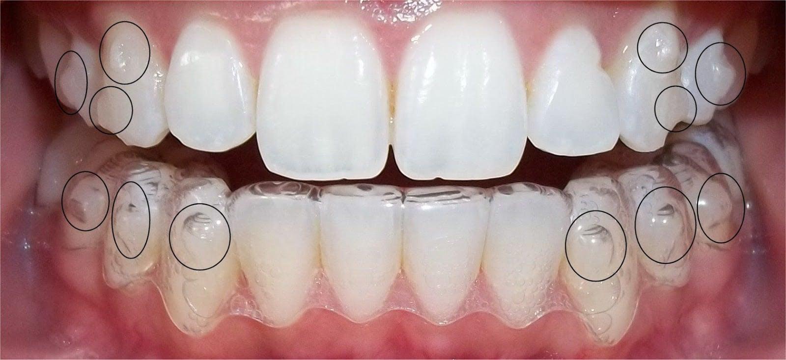 Dịch vụ niềng răng Invisalign TPHCM