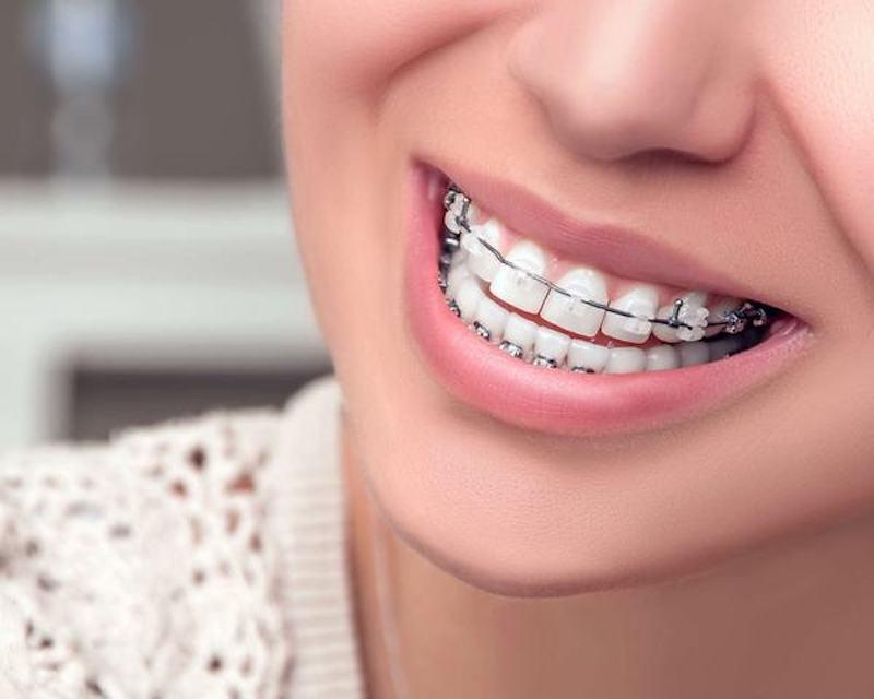 Nha Khoa Dr. Hùng - Địa chỉ niềng răng uy tín TPHCM