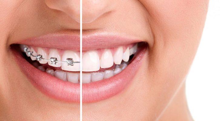 Chọn địa chỉ niềng răng ở đâu tốt TPHCM? - Nha khoa Dr Hùng