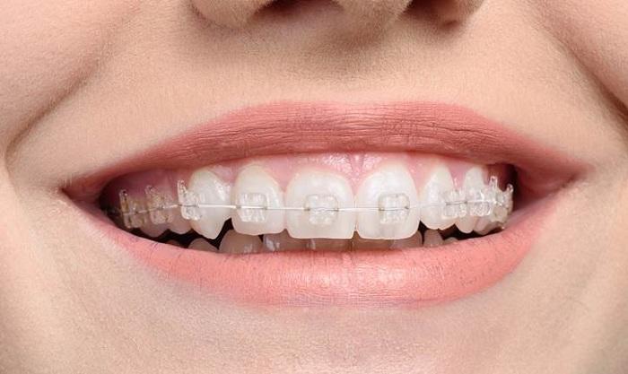 Niềng răng mắc cài sứ là gì?