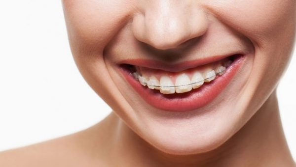 Thời gian niềng răng hô mất bao lâu?