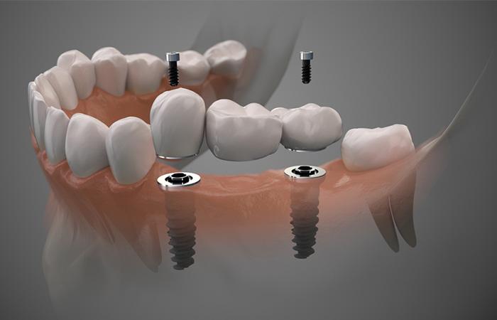 trong rang implant tai TP.HCM