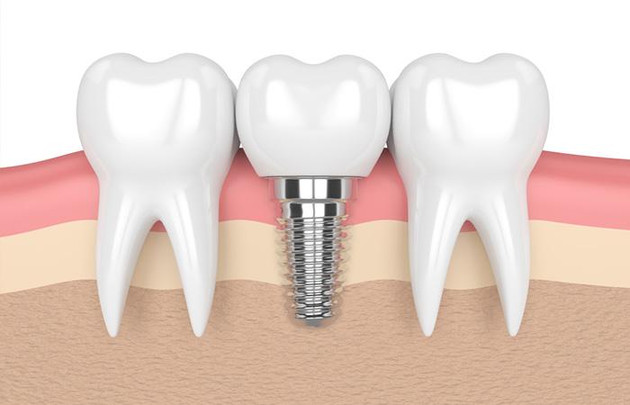 nha khoa implant